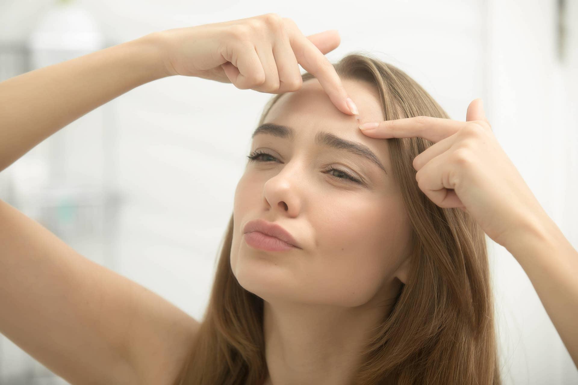 Acne Treatment Saskatoon