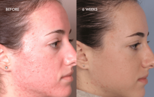 Silkpeel Dermalinfusion Protect Your Skin From Sun Damage